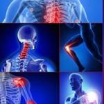 Inflamación Articulaciones