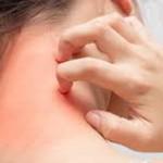 Alergias Y Picaduras